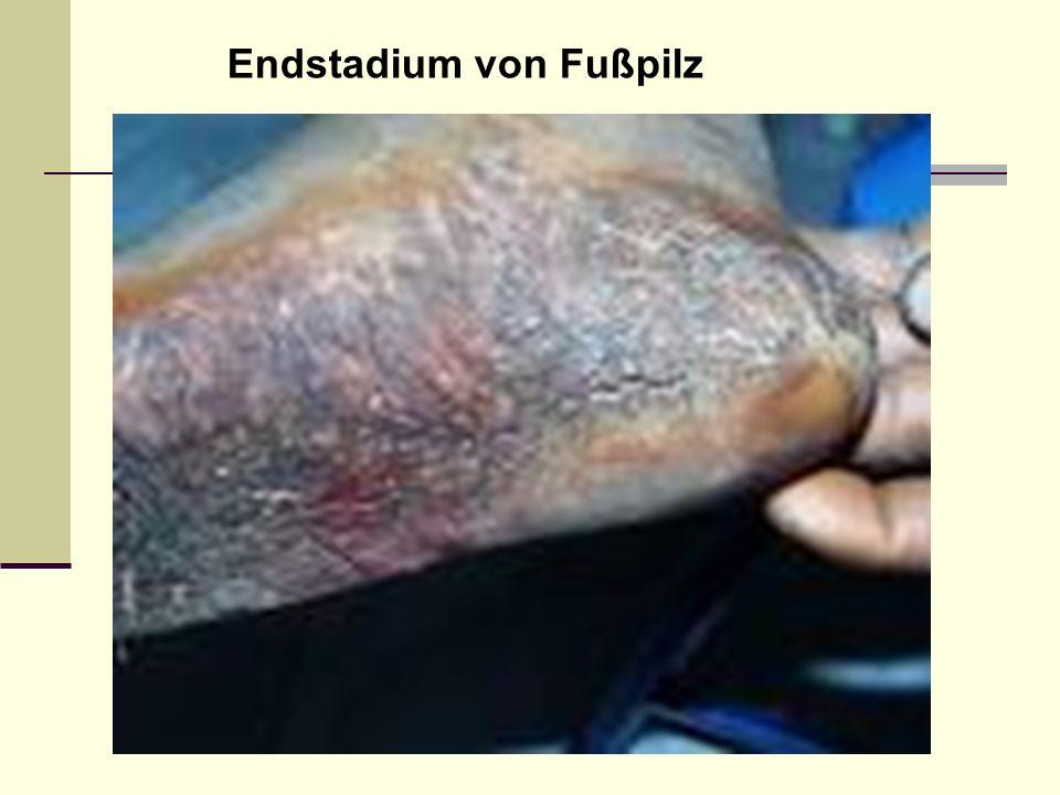 Endstadium von Fußpilz