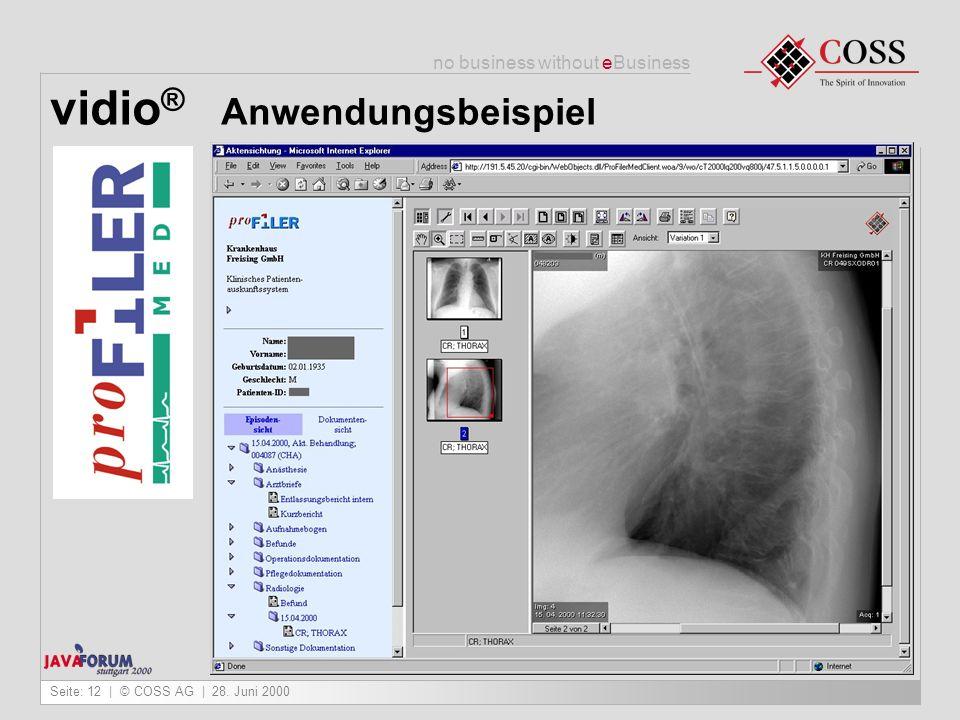 vidio® Anwendungsbeispiel