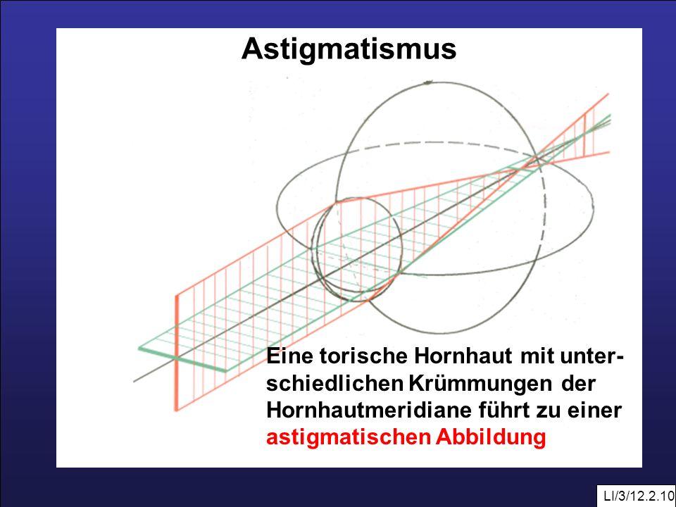 Astigmatismus Eine torische Hornhaut mit unter-schiedlichen Krümmungen der. Hornhautmeridiane führt zu einer astigmatischen Abbildung.