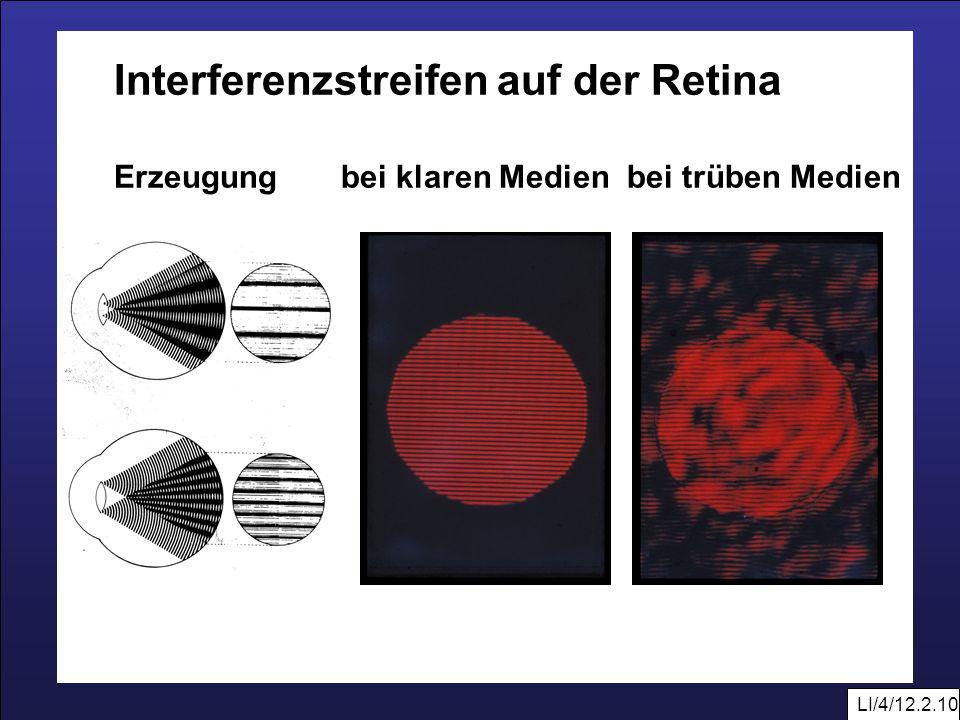Interferenzstreifen auf der Retina