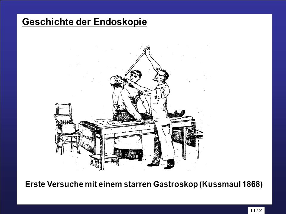 Geschichte der Endoskopie Geschichte der Endoskopie