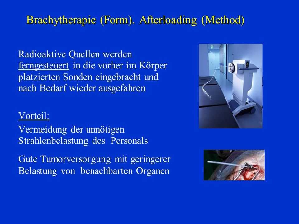 Brachytherapie (Form). Afterloading (Method)