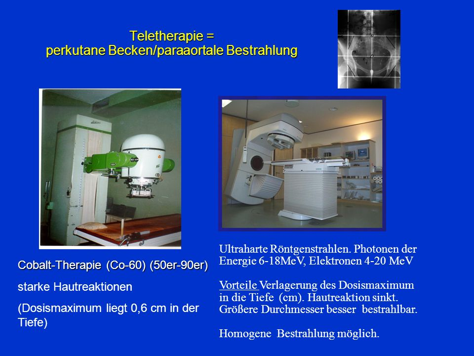 Teletherapie = perkutane Becken/paraaortale Bestrahlung