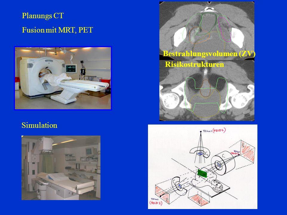 Planungs CT Fusion mit MRT, PET Bestrahlungsvolumen (ZV) Risikostrukturen Simulation