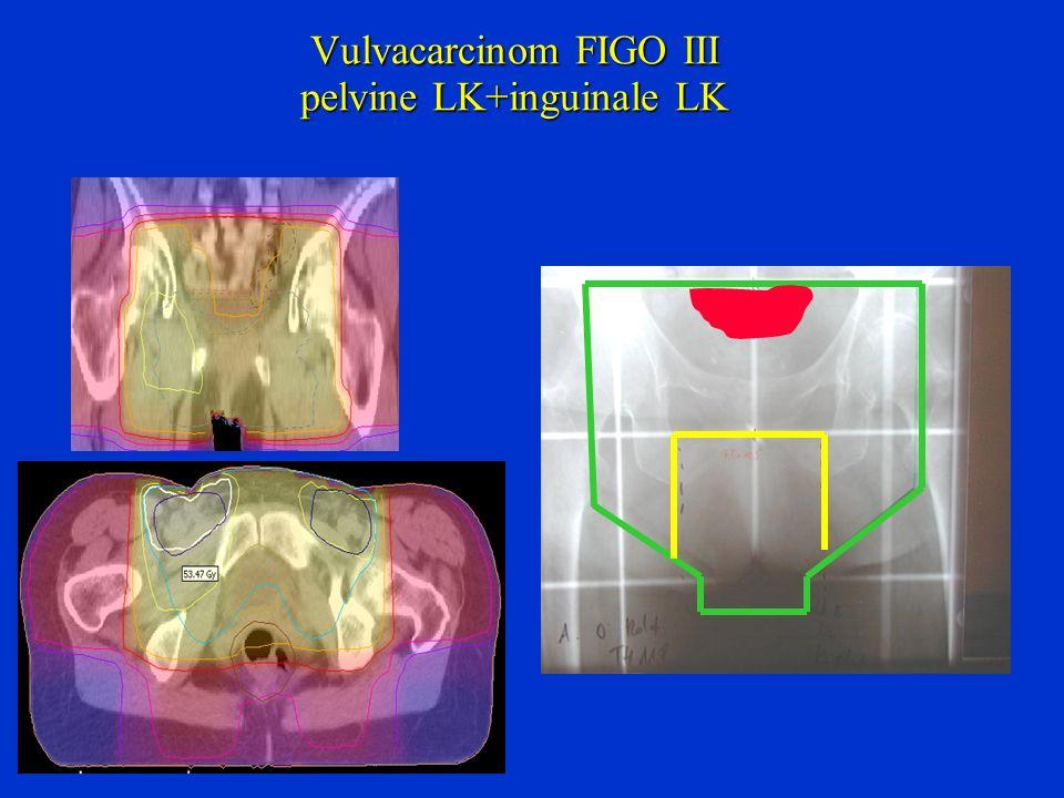 Vulvacarcinom FIGO III pelvine LK+inguinale LK