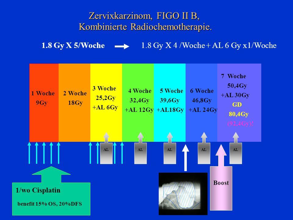 Zervixkarzinom, FIGO II B, Kombinierte Radiochemotherapie.