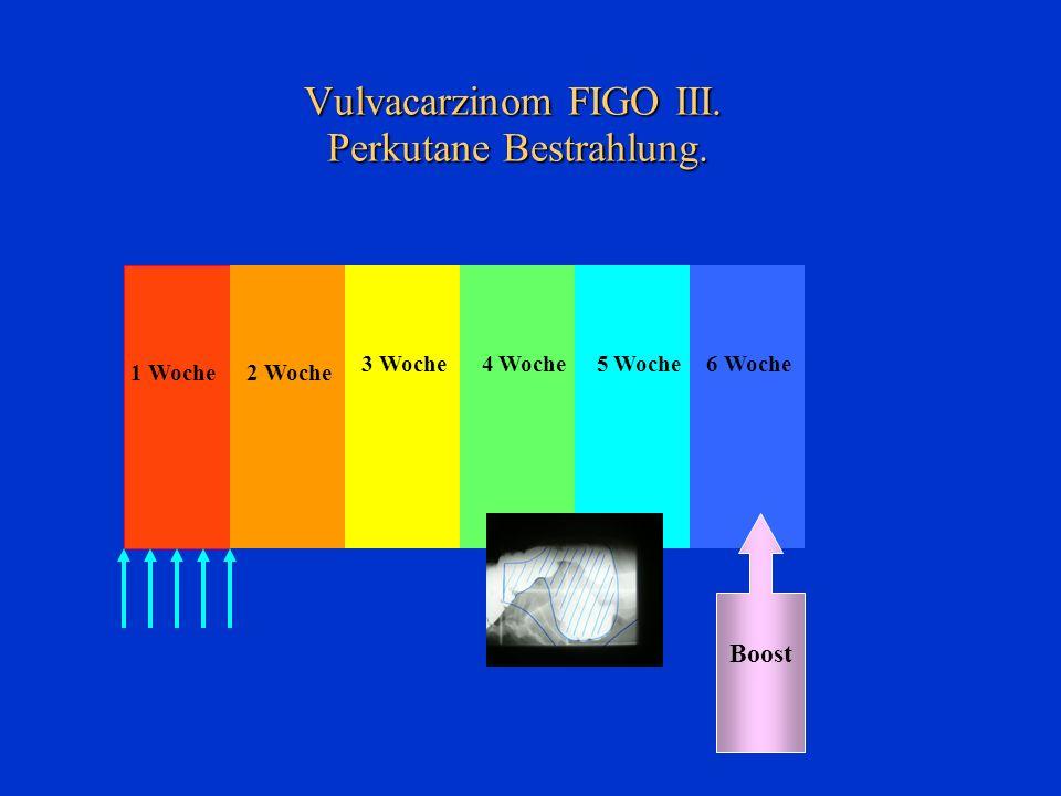 Vulvacarzinom FIGO III. Perkutane Bestrahlung.
