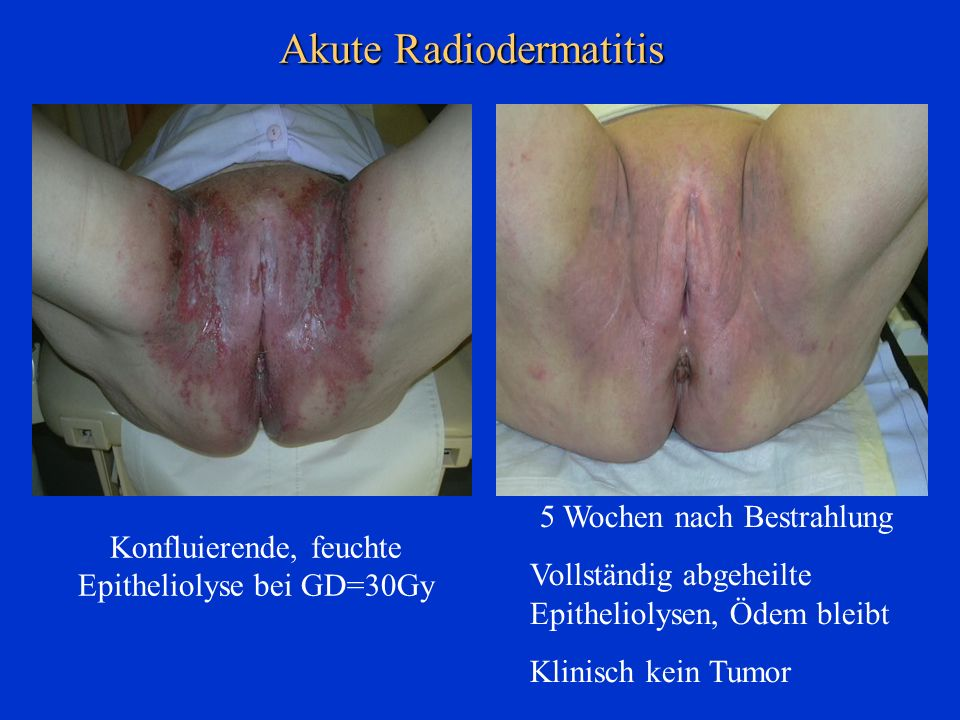 Akute Radiodermatitis