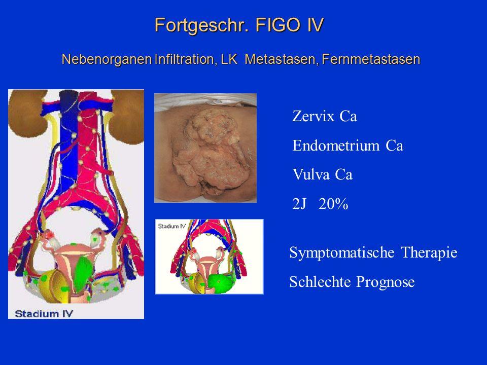 Fortgeschr. FIGO IV Nebenorganen Infiltration, LK Metastasen, Fernmetastasen