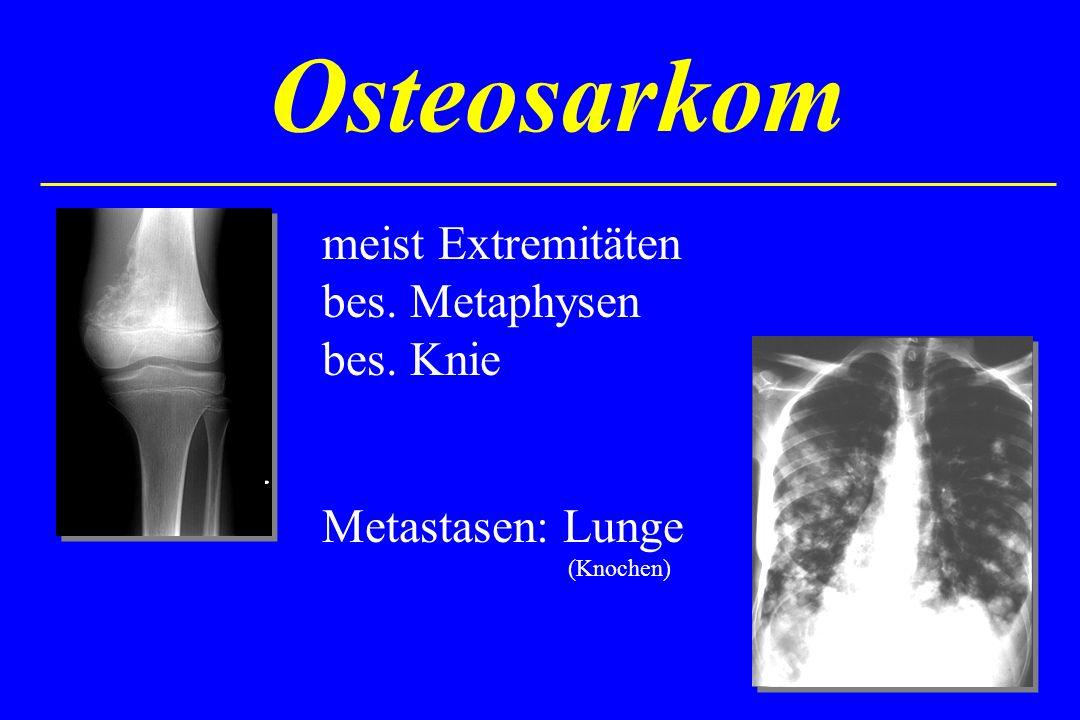Osteosarkom meist Extremitäten bes. Metaphysen bes. Knie