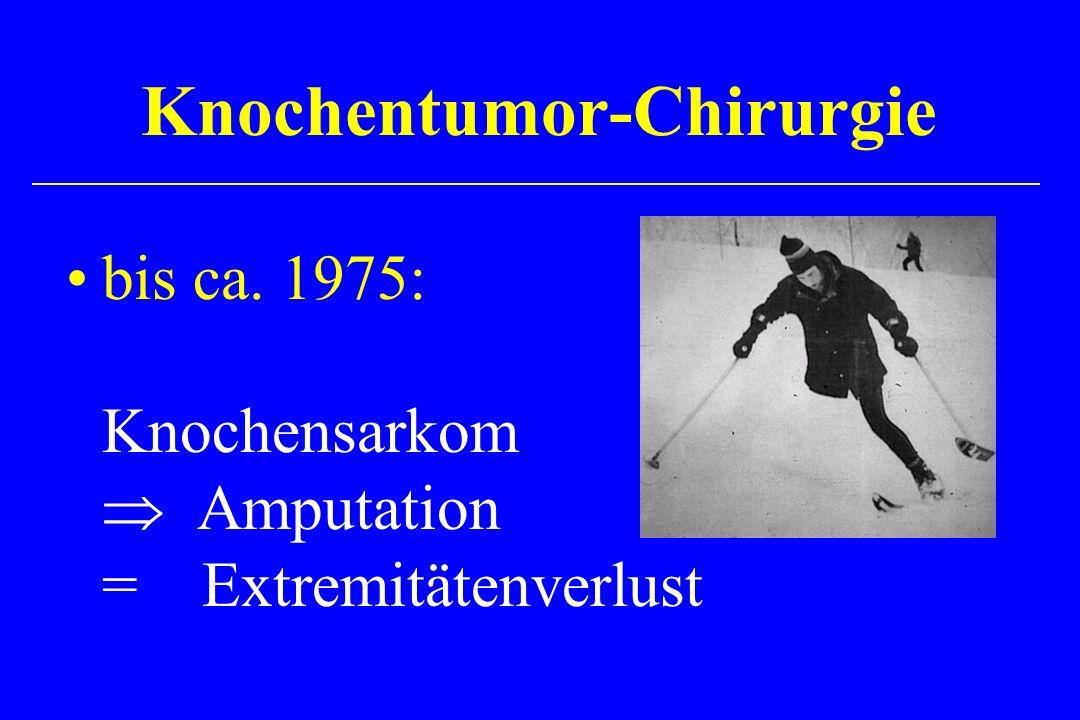 Knochentumor-Chirurgie