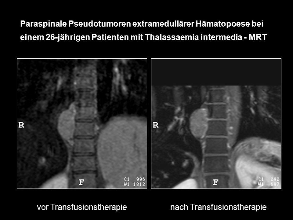 vor Transfusionstherapie nach Transfusionstherapie