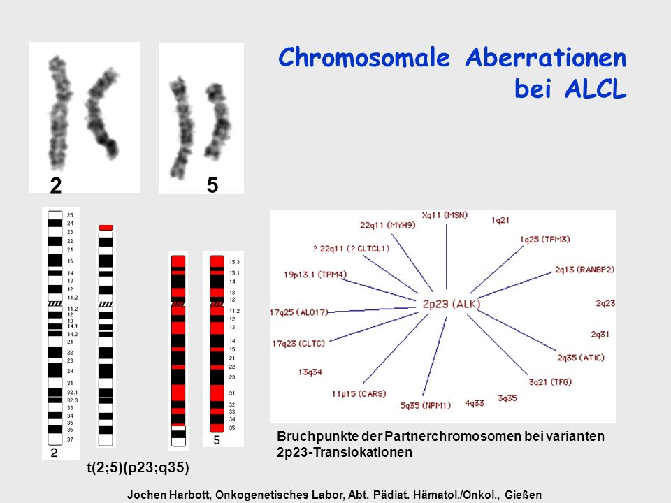 Chromosomale Aberrationen bei ALCL