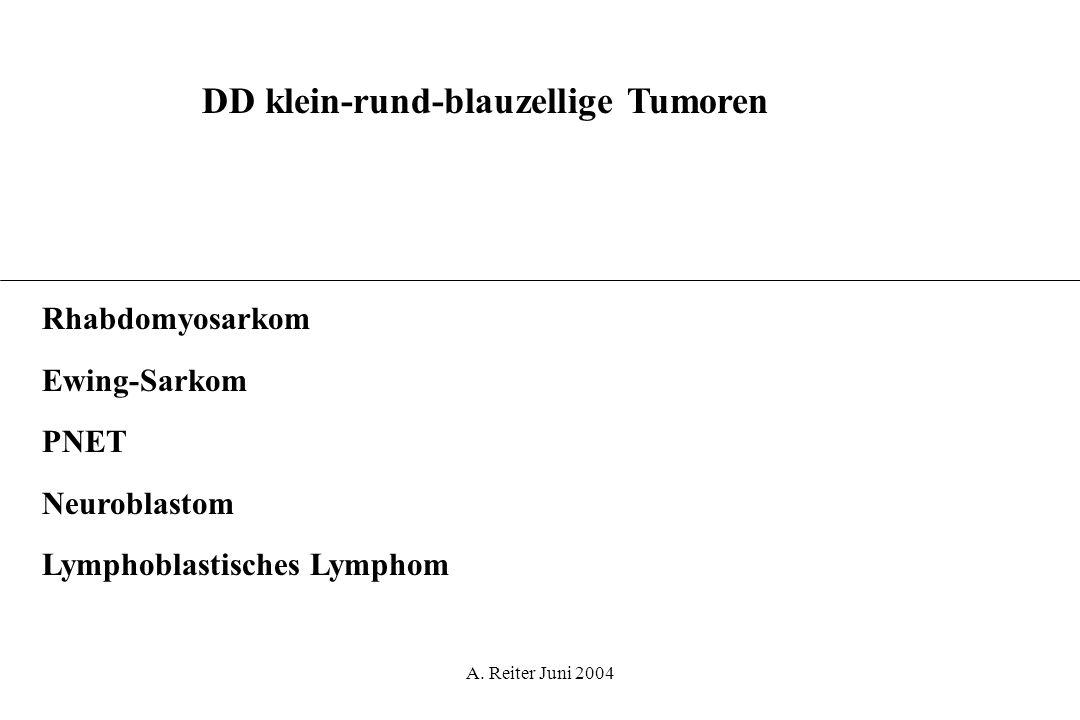 DD klein-rund-blauzellige Tumoren