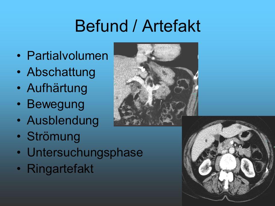Befund / Artefakt Partialvolumen Abschattung Aufhärtung Bewegung