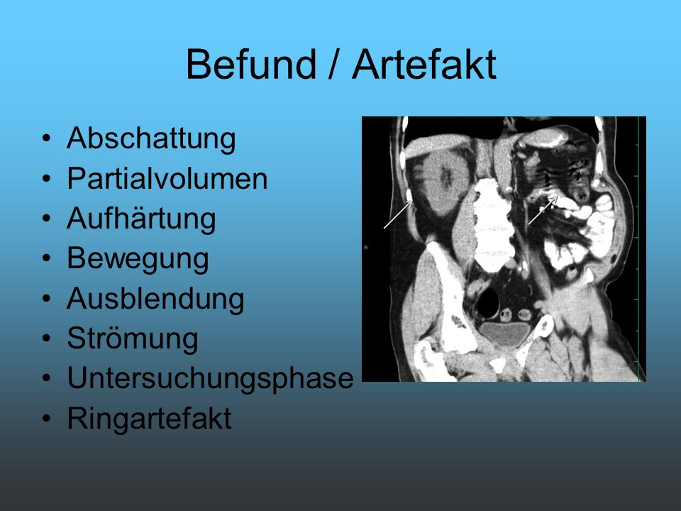 Befund / Artefakt Abschattung Partialvolumen Aufhärtung Bewegung