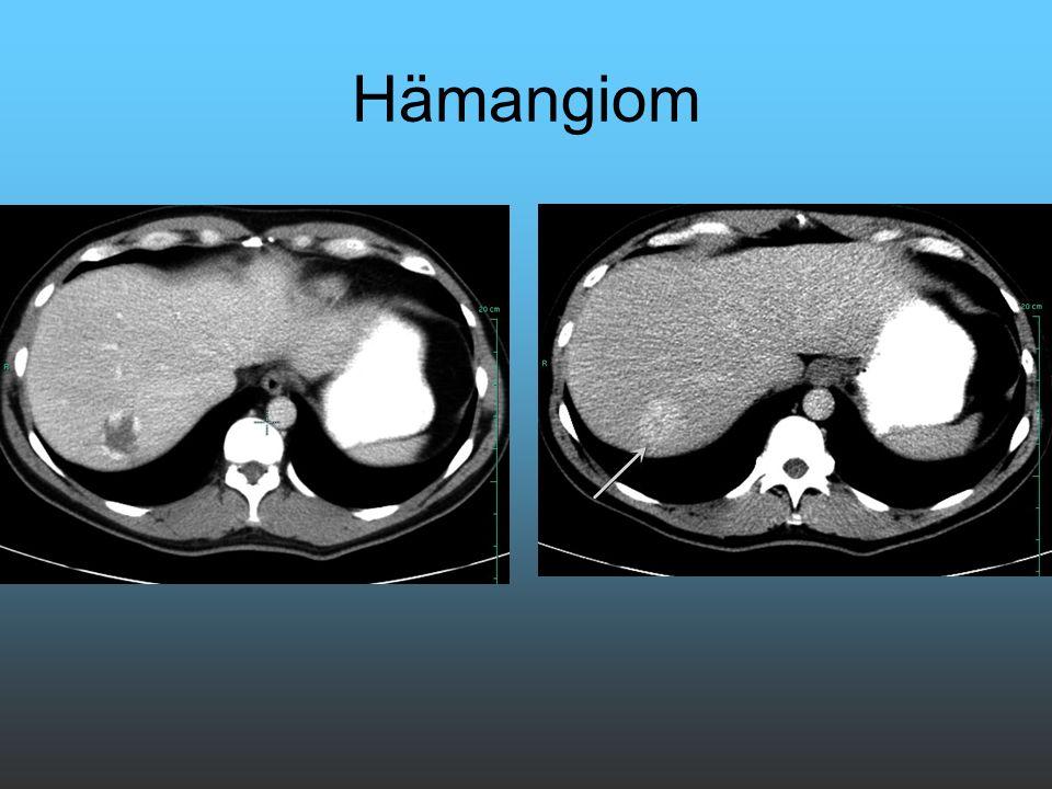 Hämangiom Leberhämangiom mit Irisblendenphänomen nach 5 min noch kontrastiert