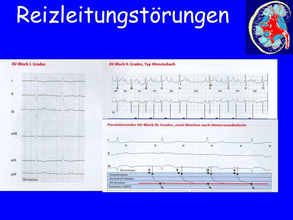 EKG-Bild AV-Block I-III°