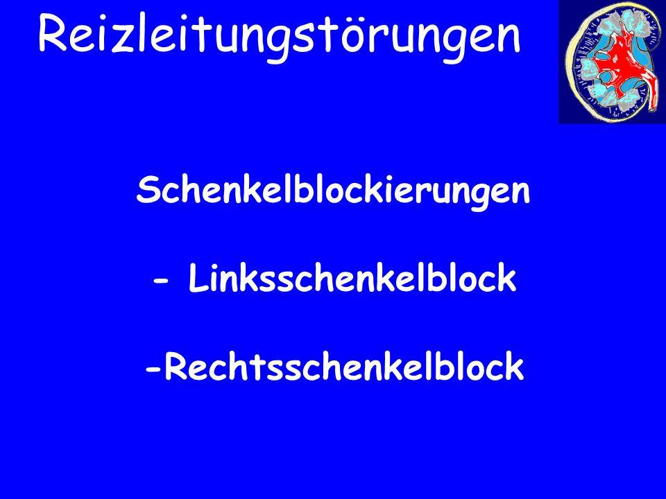 Schenkelblockierungen - Linksschenkelblock -Rechtsschenkelblock