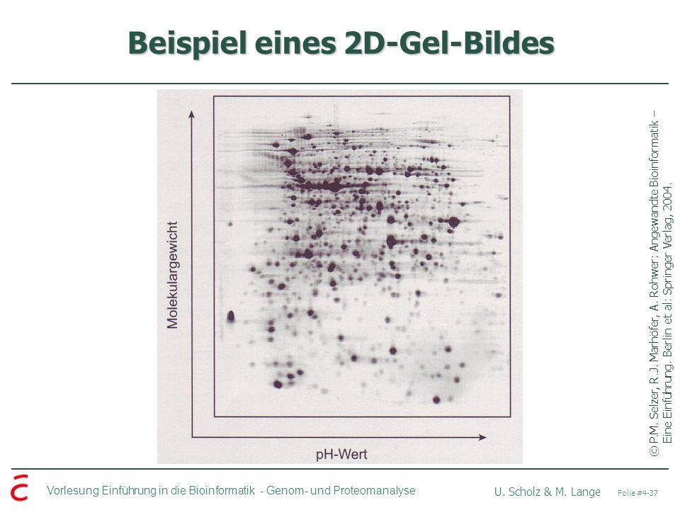 Beispiel eines 2D-Gel-Bildes