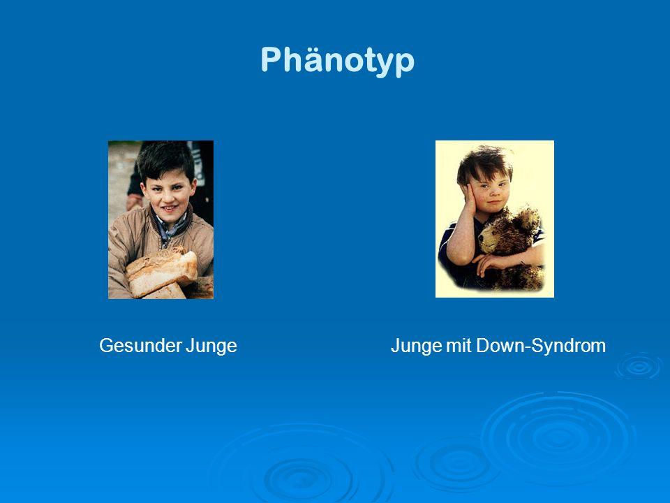 Phänotyp Gesunder Junge Junge mit Down-Syndrom