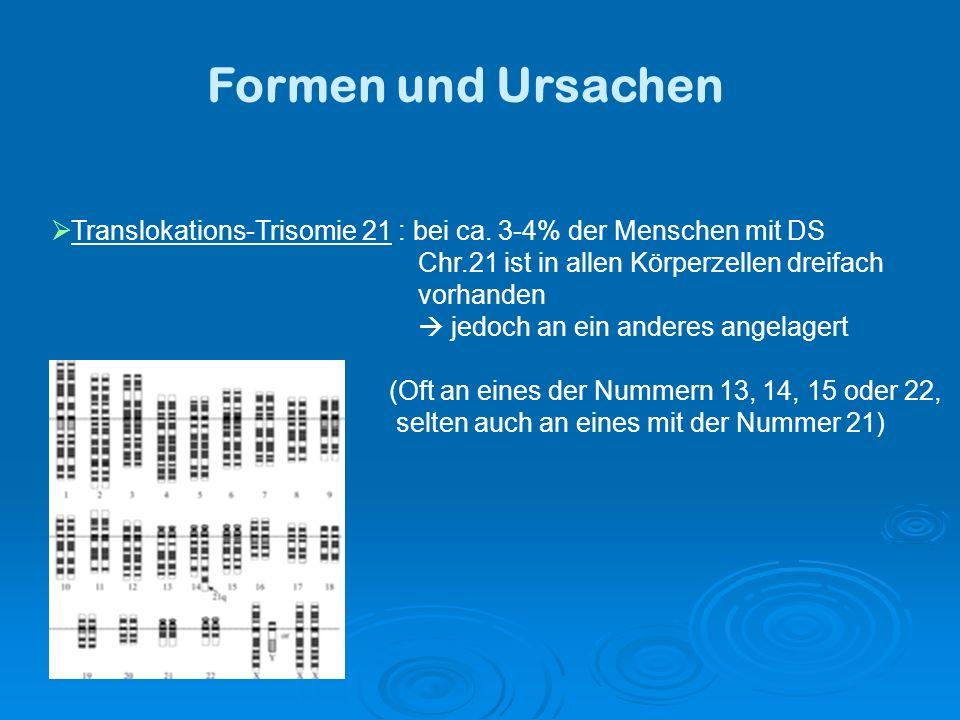 Formen und Ursachen Translokations-Trisomie 21 : bei ca. 3-4% der Menschen mit DS. Chr.21 ist in allen Körperzellen dreifach.