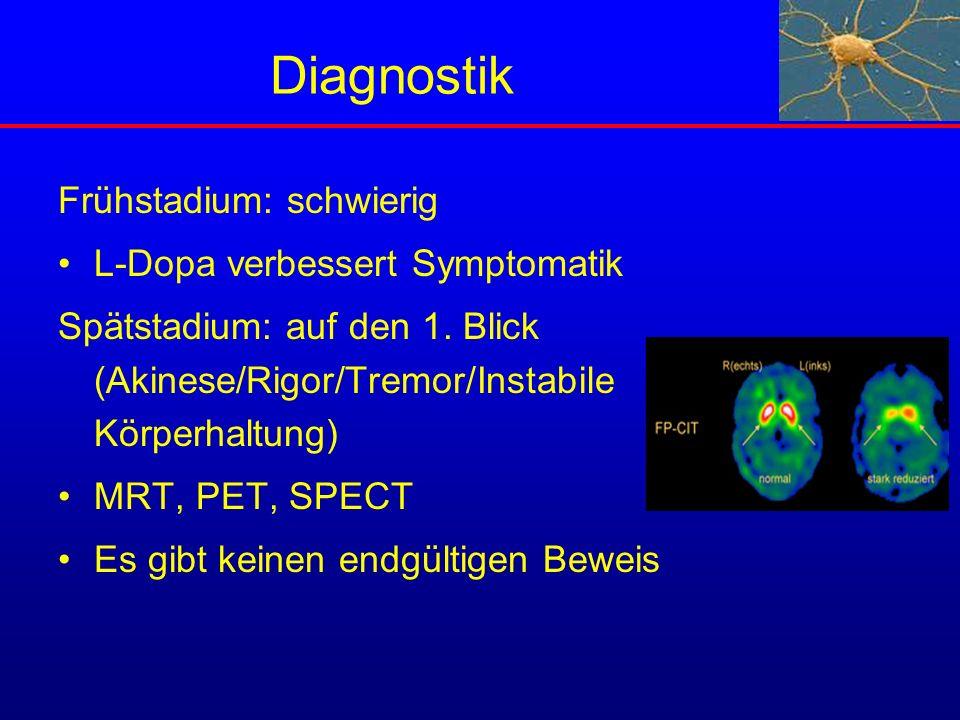 Diagnostik Frühstadium: schwierig L-Dopa verbessert Symptomatik