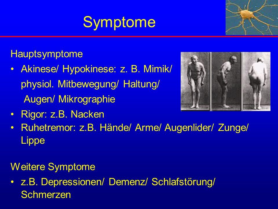 Symptome Hauptsymptome Akinese/ Hypokinese: z. B. Mimik/
