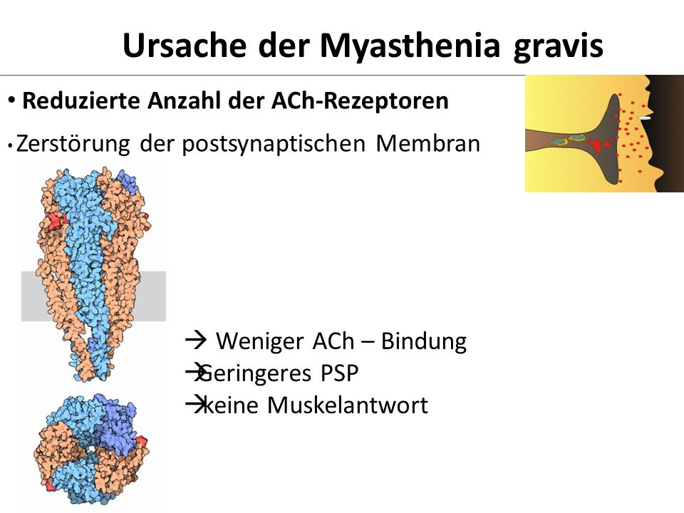 Ursache der Myasthenia gravis