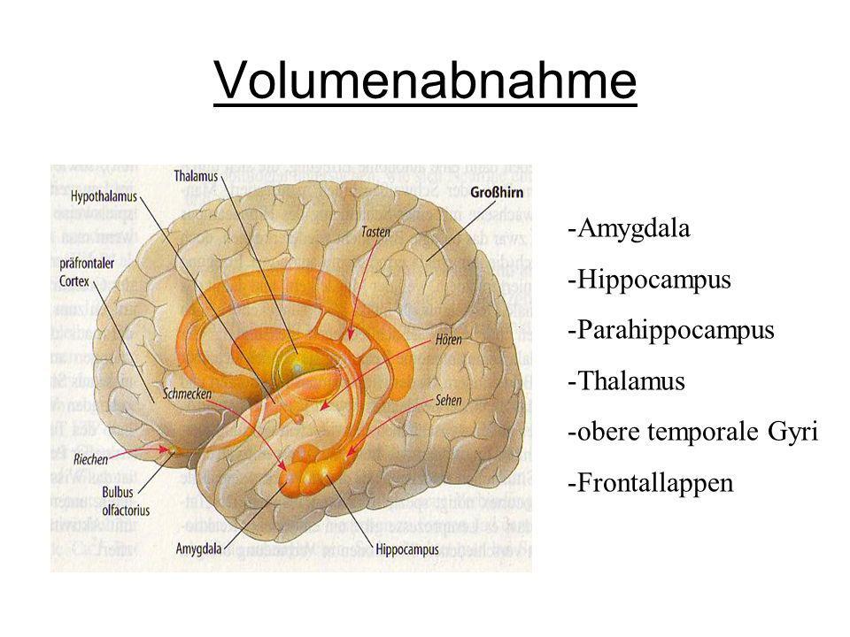 Volumenabnahme Amygdala Hippocampus Parahippocampus Thalamus