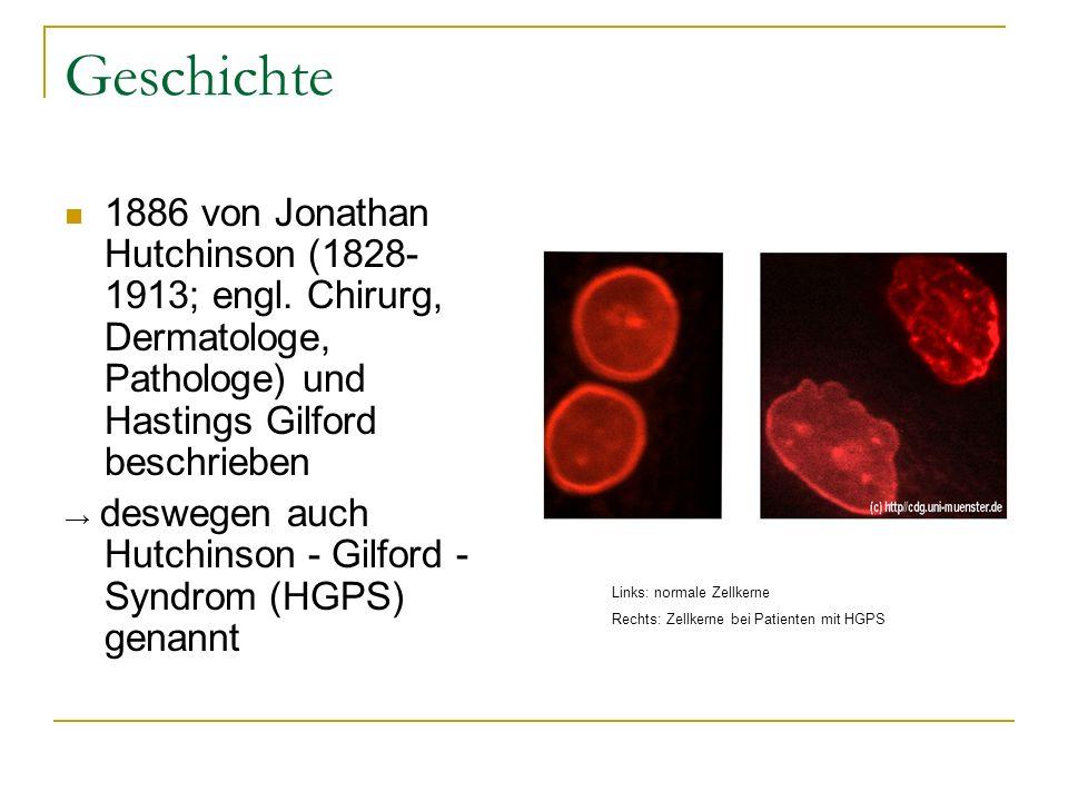 Geschichte1886 von Jonathan Hutchinson (1828-1913; engl. Chirurg, Dermatologe, Pathologe) und Hastings Gilford beschrieben.