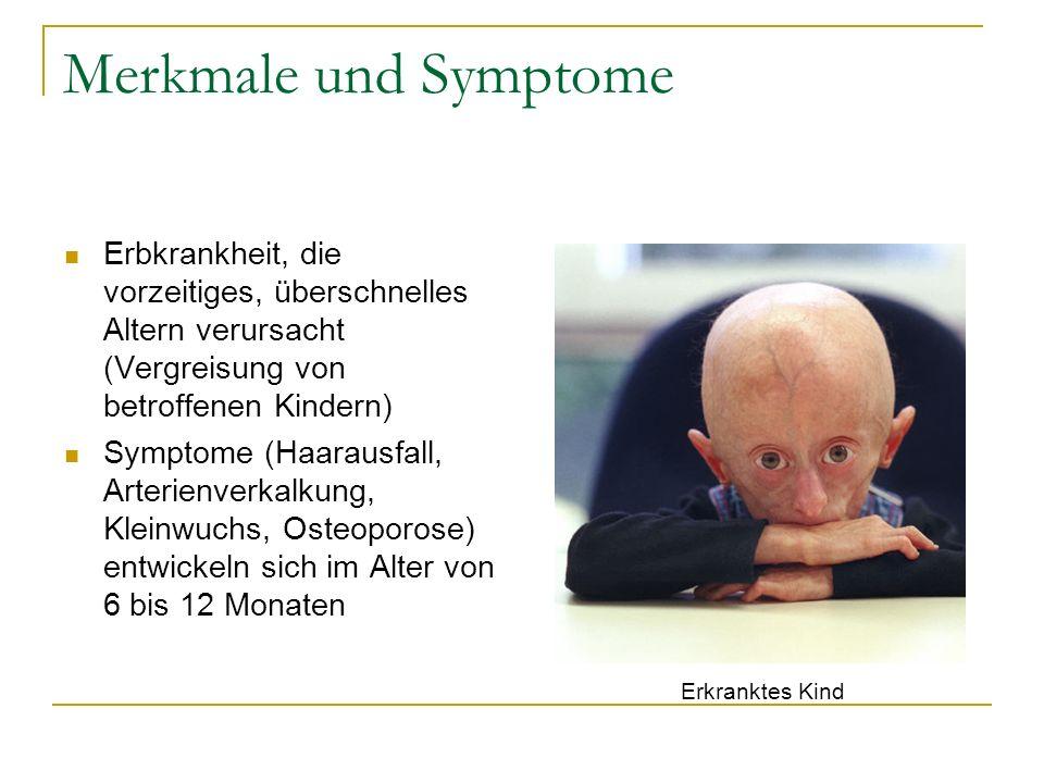 Merkmale und SymptomeErbkrankheit, die vorzeitiges, überschnelles Altern verursacht (Vergreisung von betroffenen Kindern)