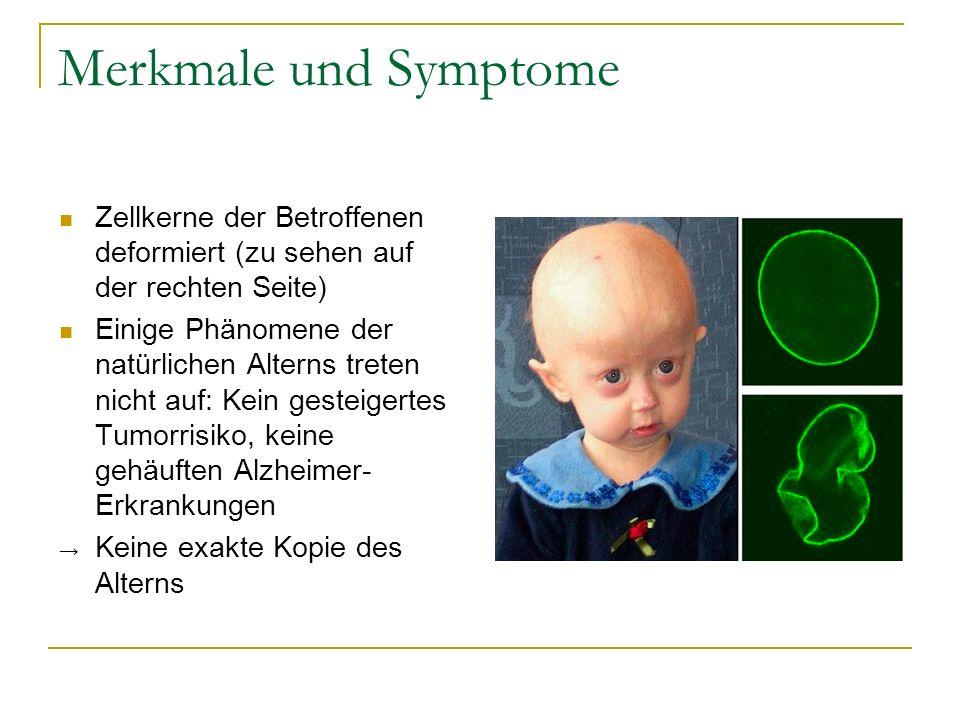 Merkmale und SymptomeZellkerne der Betroffenen deformiert (zu sehen auf der rechten Seite)