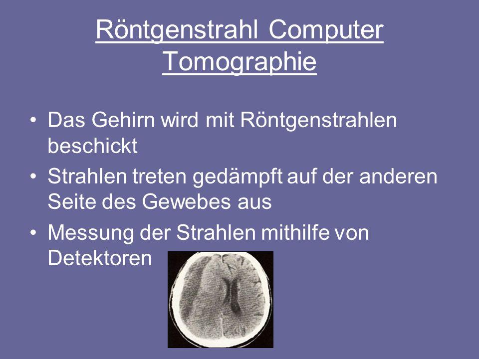 Röntgenstrahl Computer Tomographie