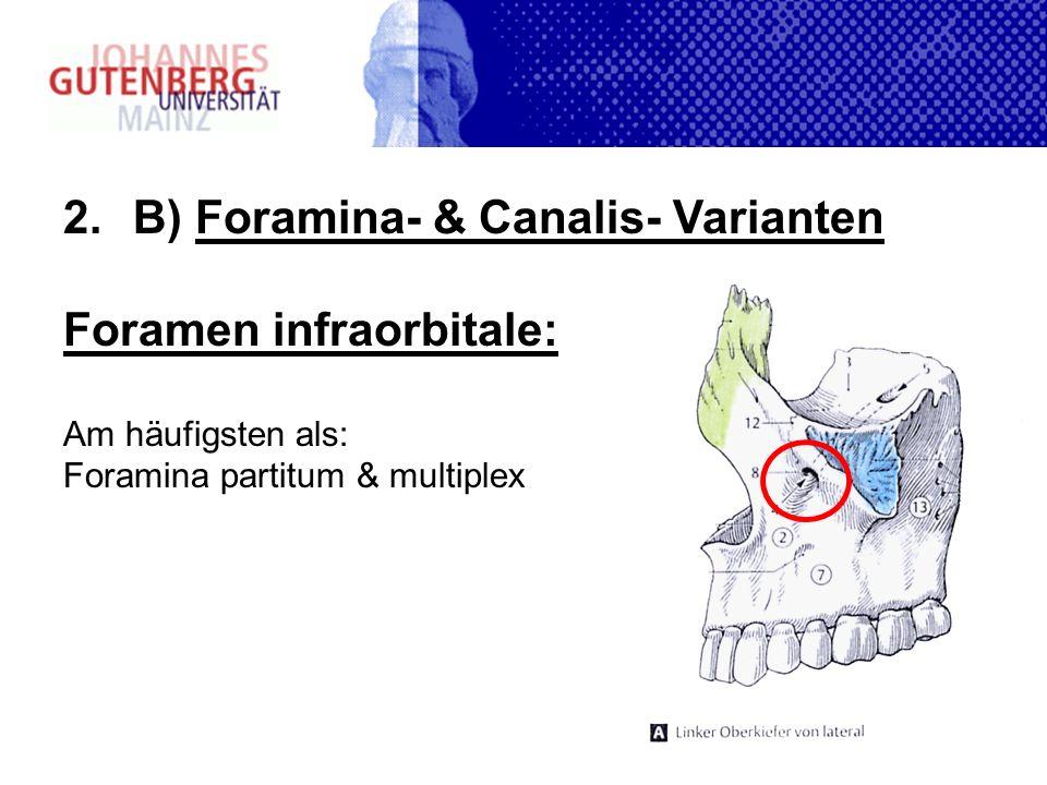 B) Foramina- & Canalis- Varianten Foramen infraorbitale: