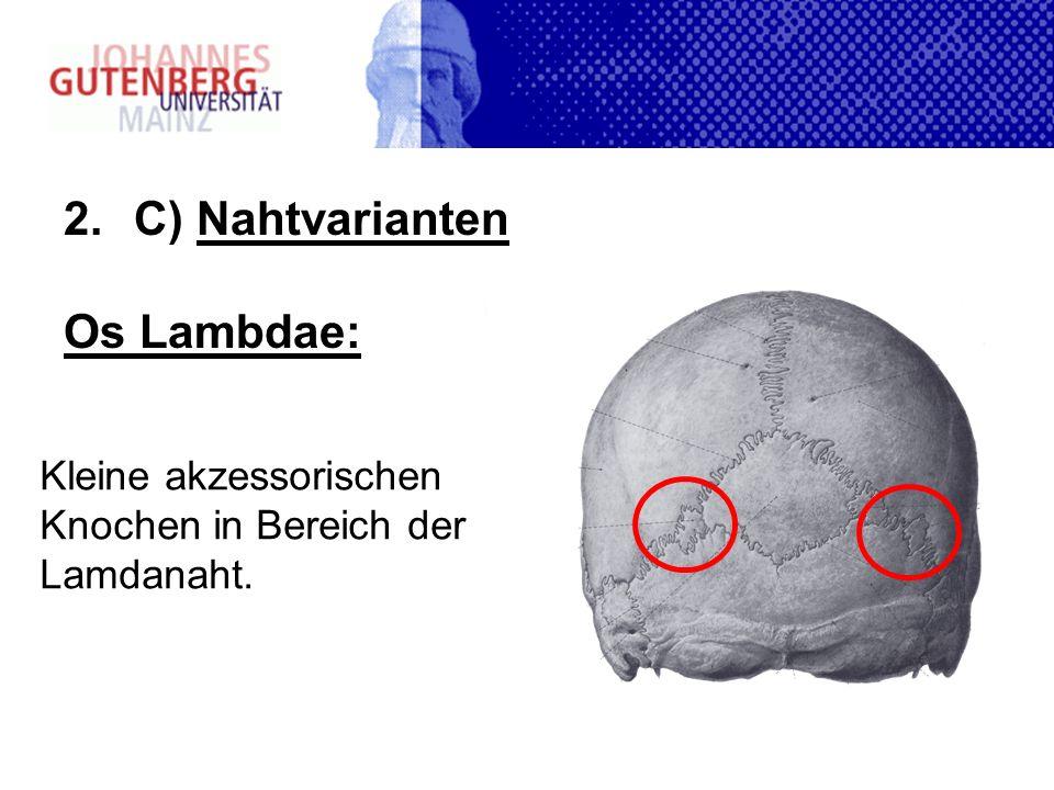 C) Nahtvarianten Os Lambdae: Kleine akzessorischen