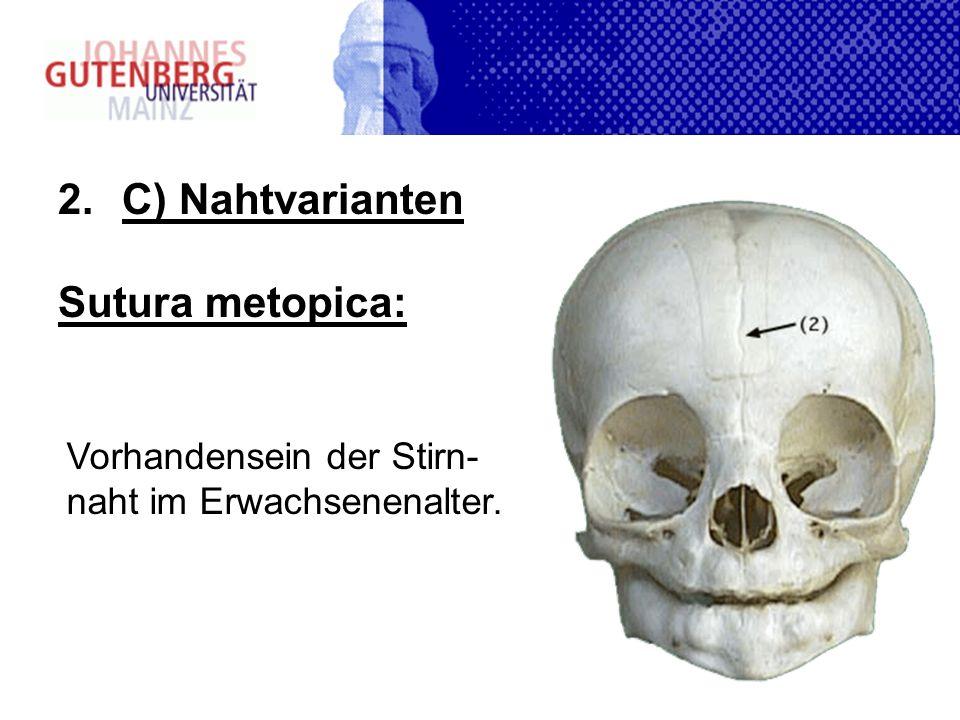 C) Nahtvarianten Sutura metopica: Vorhandensein der Stirn-