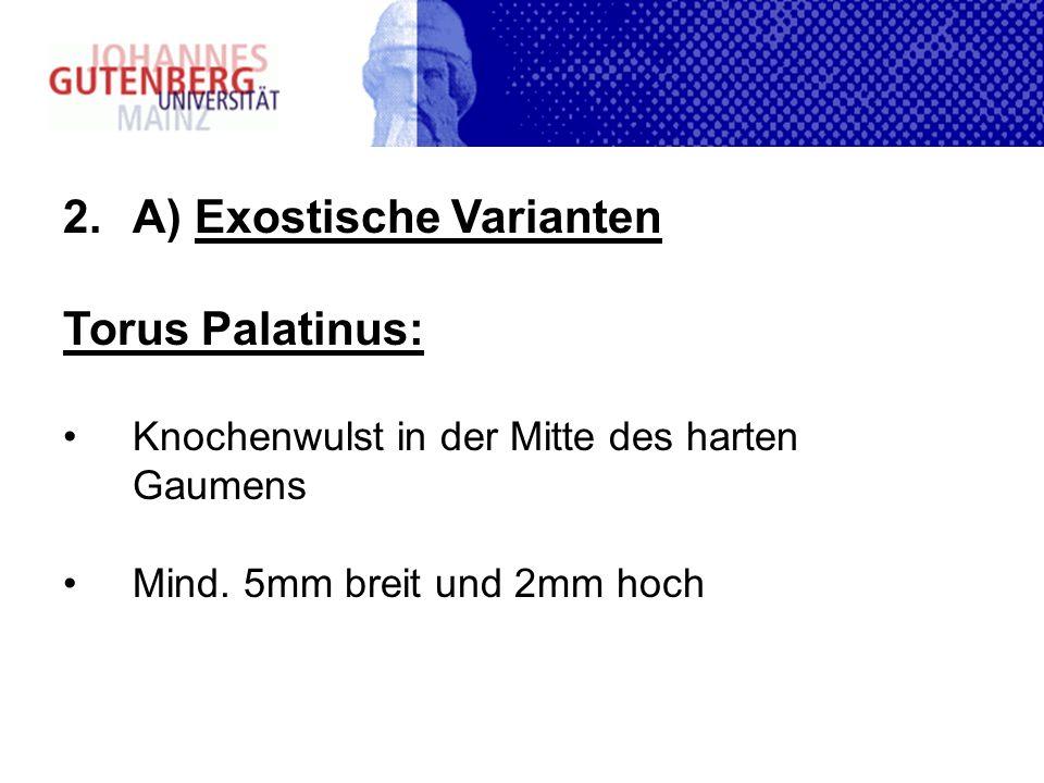 A) Exostische Varianten Torus Palatinus: