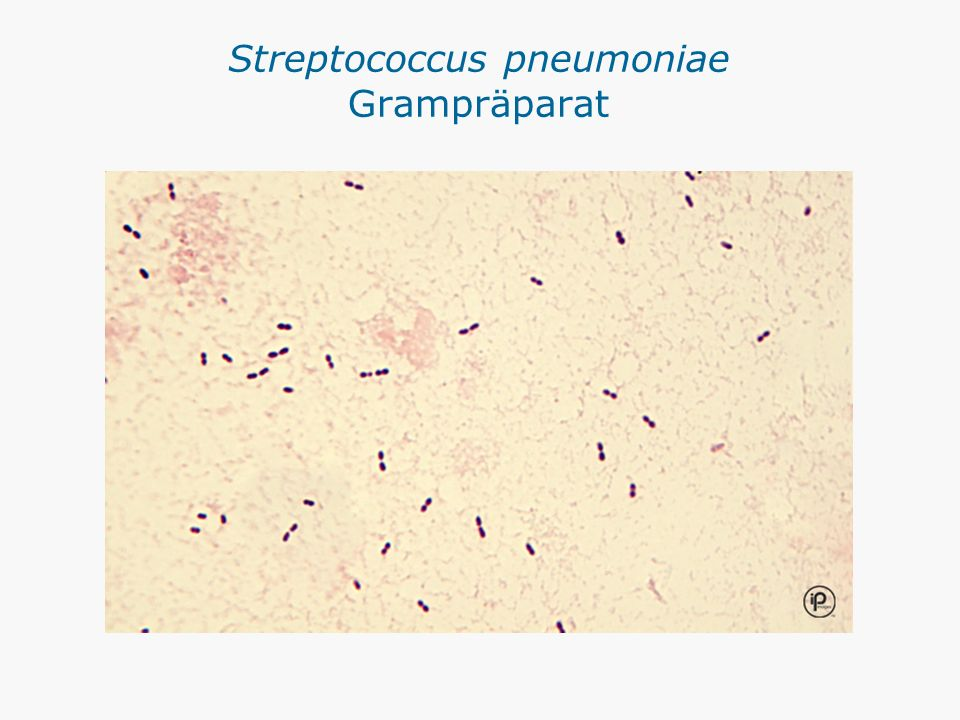 Streptococcus pneumoniae Grampräparat