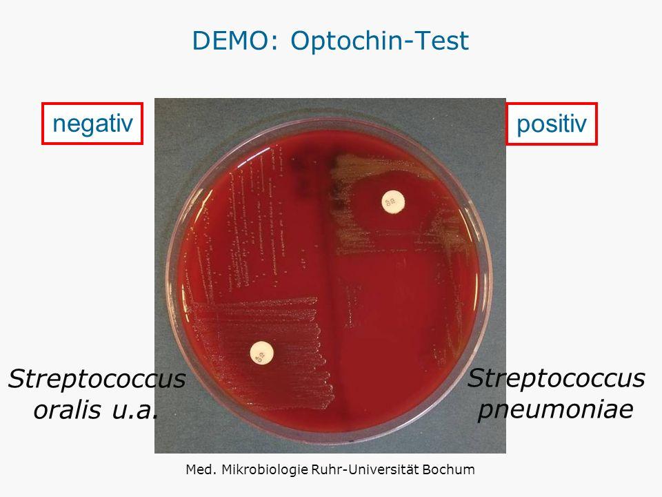 Streptococcus oralis u.a. Streptococcus pneumoniae