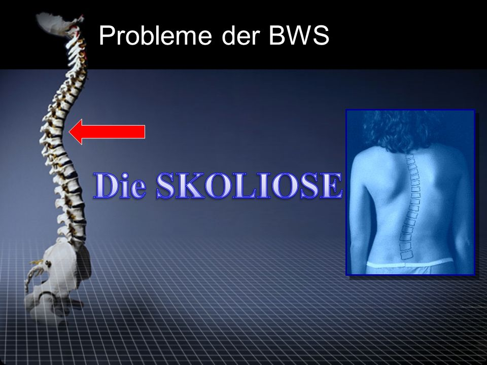 Probleme der BWS Die SKOLIOSE