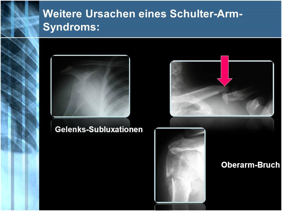 Weitere Ursachen eines Schulter-Arm-Syndroms: