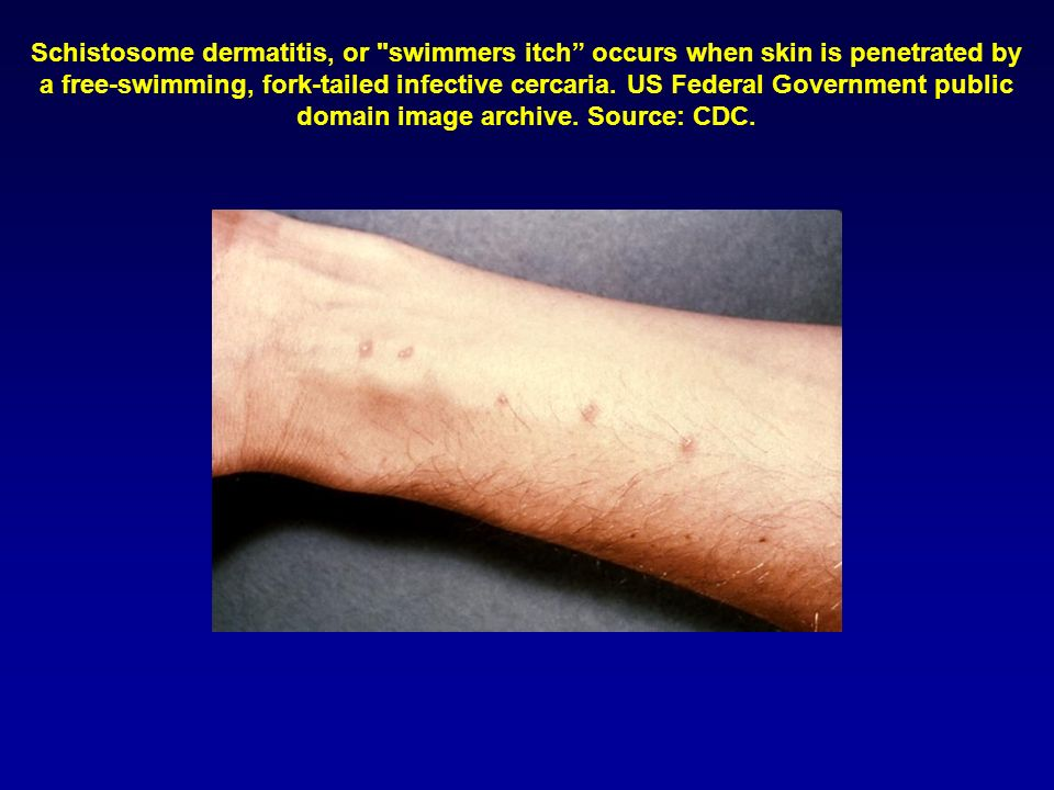 Schistosome dermatitis, or swimmers itch occurs when skin is penetrated by a free-swimming, fork-tailed infective cercaria.