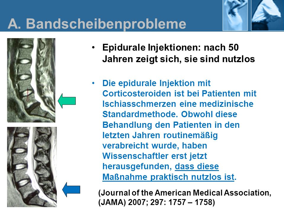 A. Bandscheibenprobleme