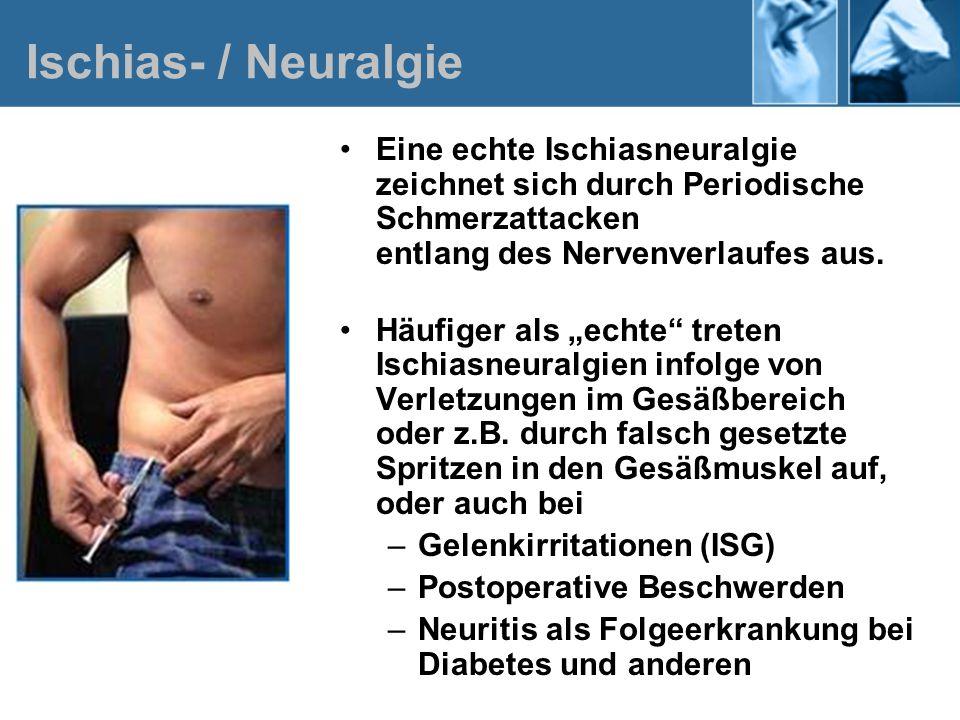 Ischias- / NeuralgieEine echte Ischiasneuralgie zeichnet sich durch Periodische Schmerzattacken entlang des Nervenverlaufes aus.