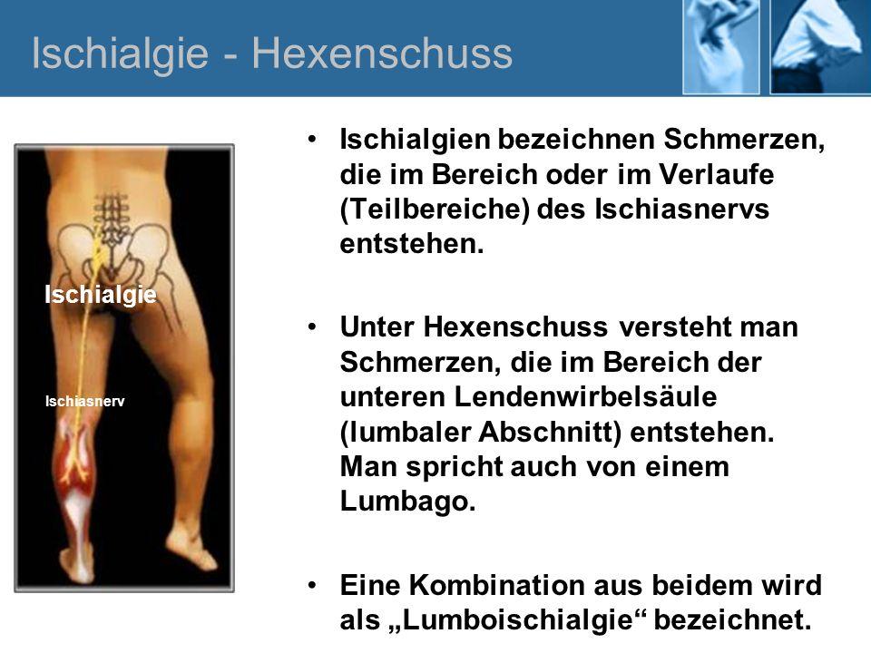 Ischialgie - Hexenschuss