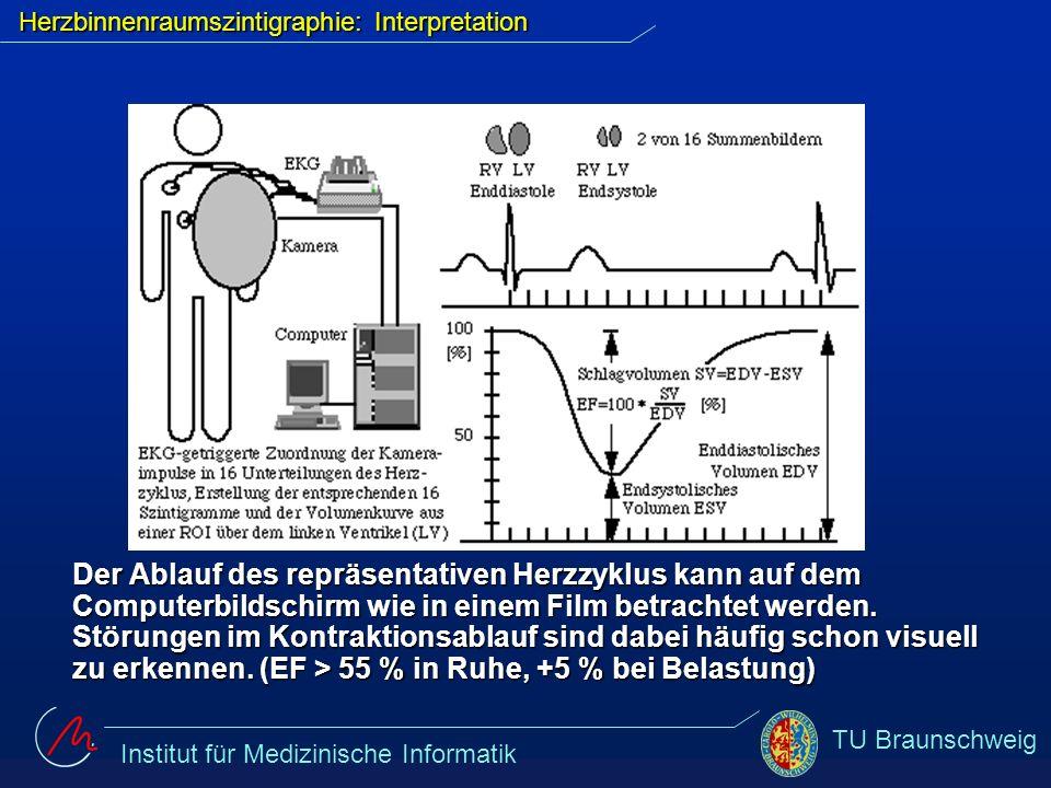 Herzbinnenraumszintigraphie: Interpretation