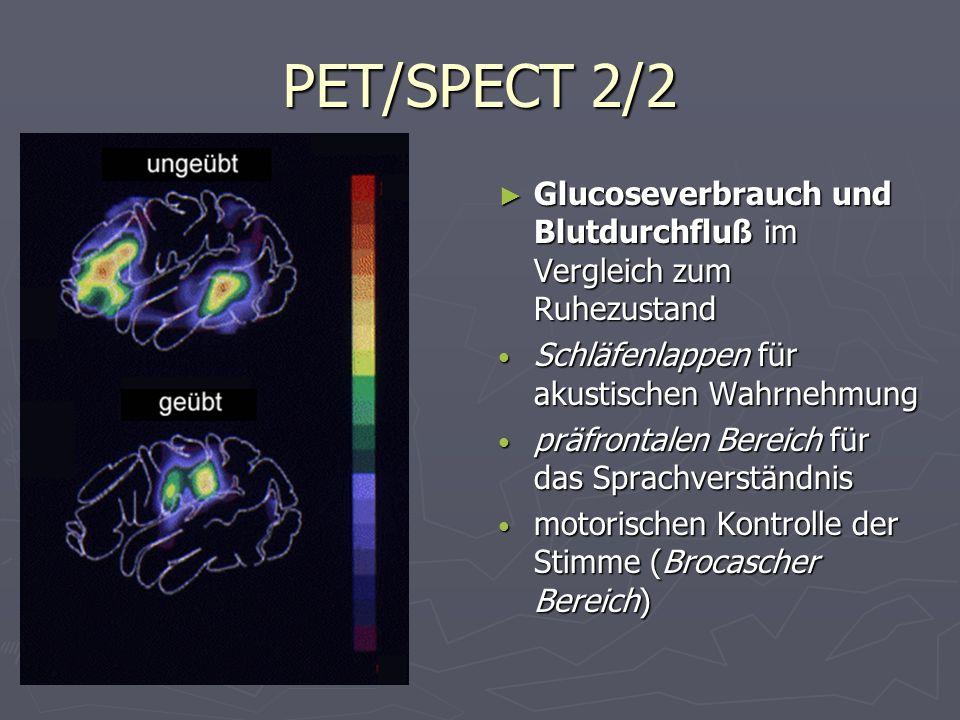 PET/SPECT 2/2 Glucoseverbrauch und Blutdurchfluß im Vergleich zum Ruhezustand. Schläfenlappen für akustischen Wahrnehmung.