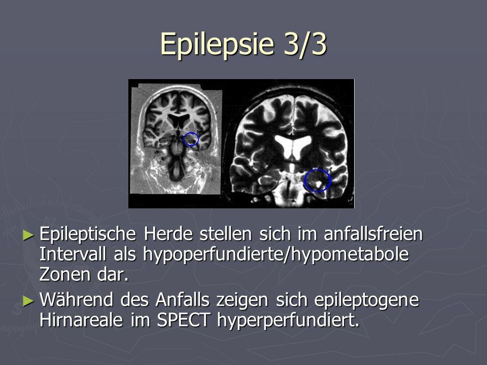 Epilepsie 3/3Epileptische Herde stellen sich im anfallsfreien Intervall als hypoperfundierte/hypometabole Zonen dar.