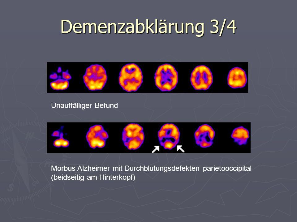 Demenzabklärung 3/4 Unauffälliger Befund